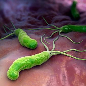 helicobacter-zaludek